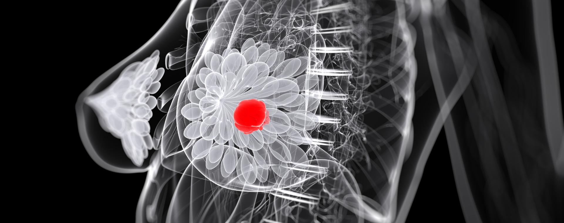 Tumore al seno: individuato processo che ne aumenta espansione e propagazione
