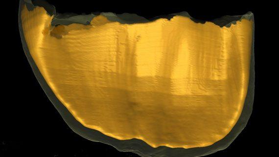 I denti di un feto preistorico raccontano gli ultimi mesi di vita di una madre del Paleolitico