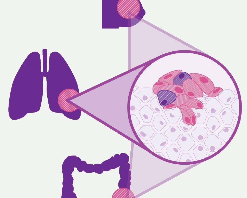 Medicina anticancro di precisione: al via PreCanMed progetto transftontaliero tra FVG e Tirolo