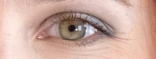 Rigenerazione delle cellule dell'occhio: scoperte spie di allarme